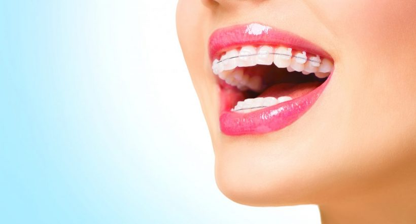 Important tips about clear braces